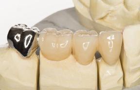 歯がない、歯が欠けた場合の治療に強い